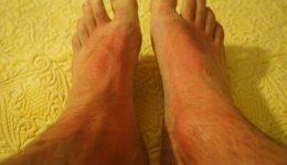 sunburn-feet_pixabay